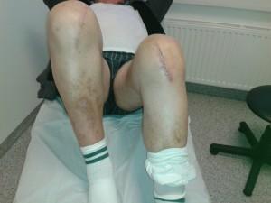 Funktion der Schlittenprothese / Oxford-Knee